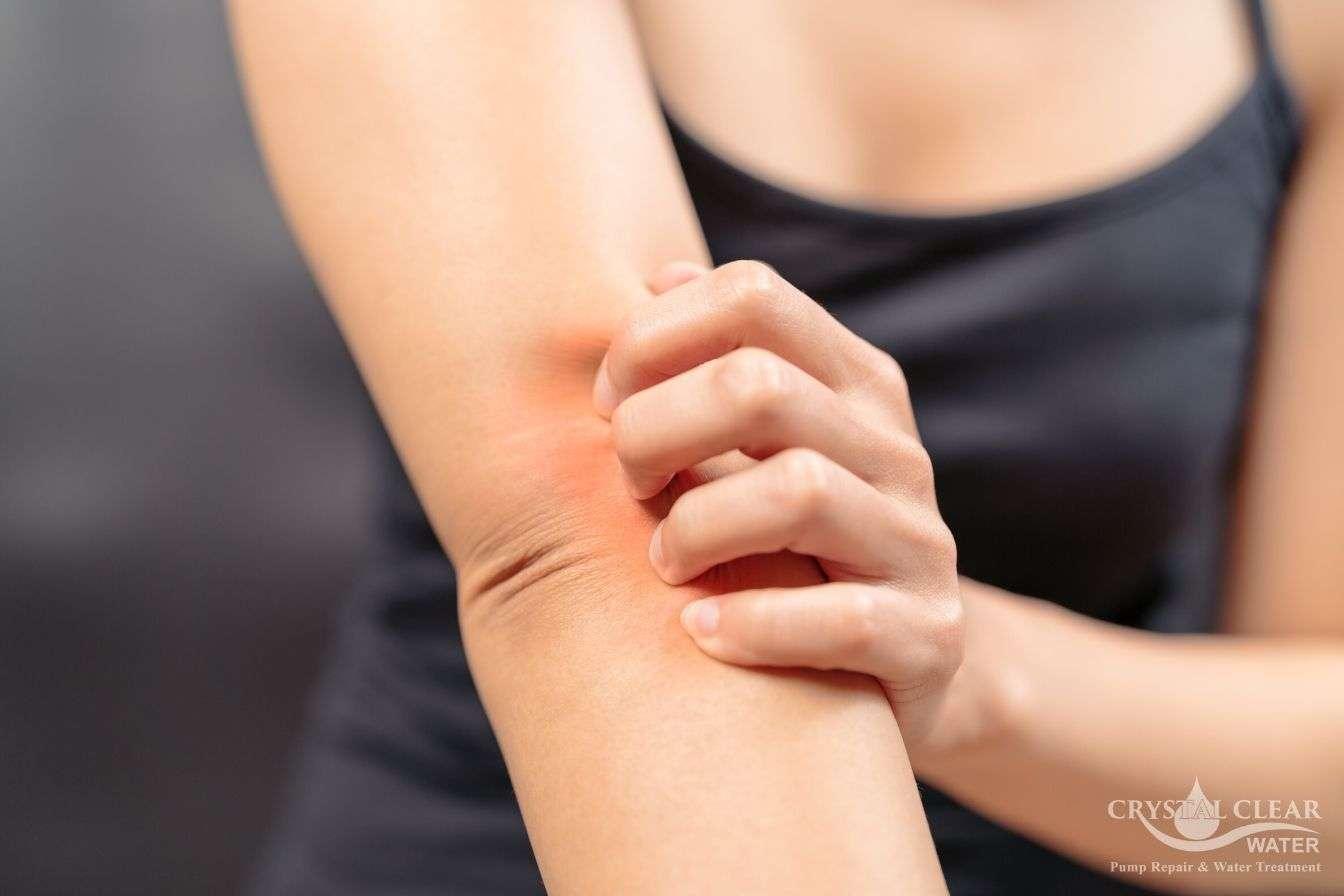 hard water causing skin irritation